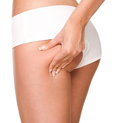Liposuction – Ardmore Fat Removal Lipoplasty
