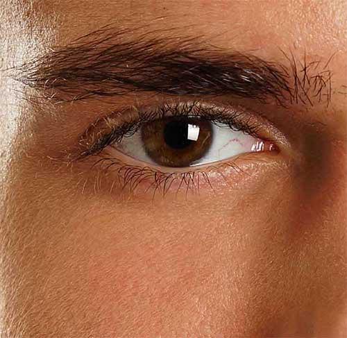Men-Eyelid-Surgery