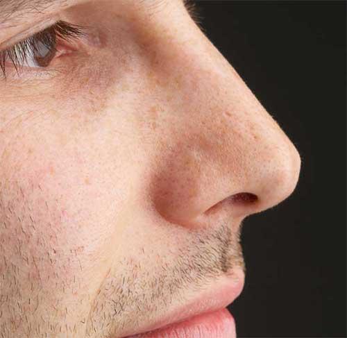 Men-Nose-Surgery