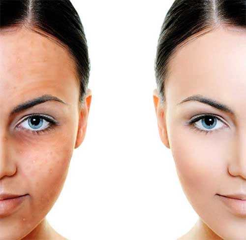 clearlift-lunchtime-facelift